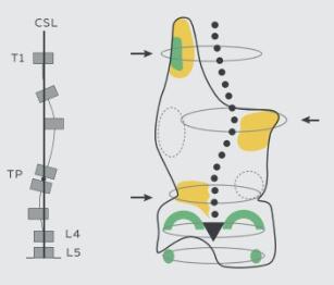 skolioza-typu-c_07