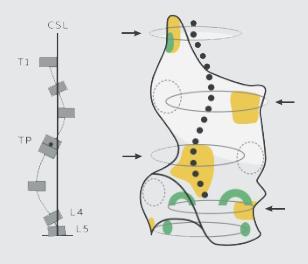 skoliozy-czterolukowe-b_03