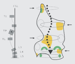 skoliozy-trojlukowe-a_01
